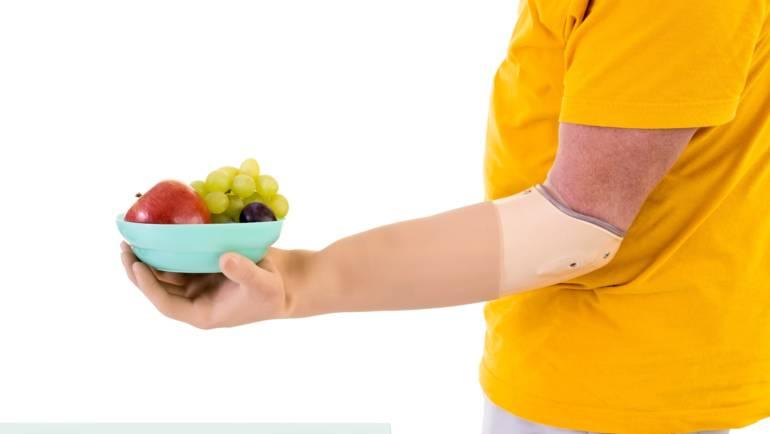 Orthopédie Toussaint conçoit votre prothèse de main myoélectrique